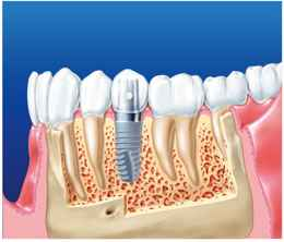 Implant-based Crown - Frialit®